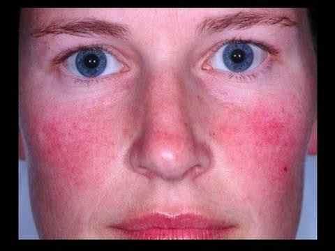 maladie de rosacée