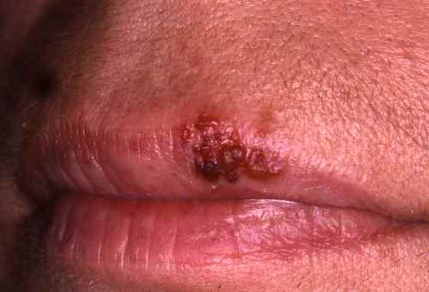 Herpes labial au stade crouteux