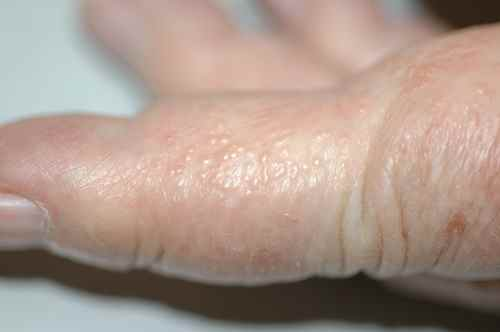 Cloques d'eau sur les doigts