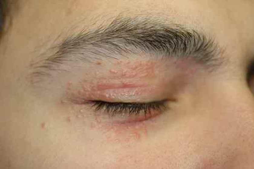 Eczema aigu de la paupiere