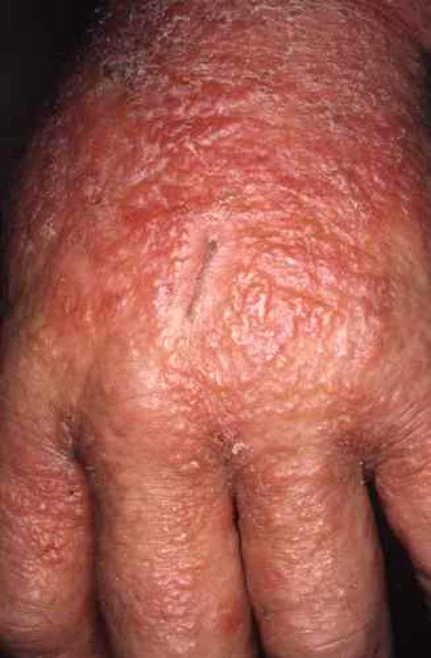 Eczema aigu vésiculeux de la main