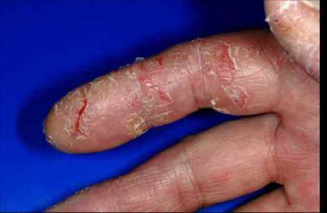 eczema mains