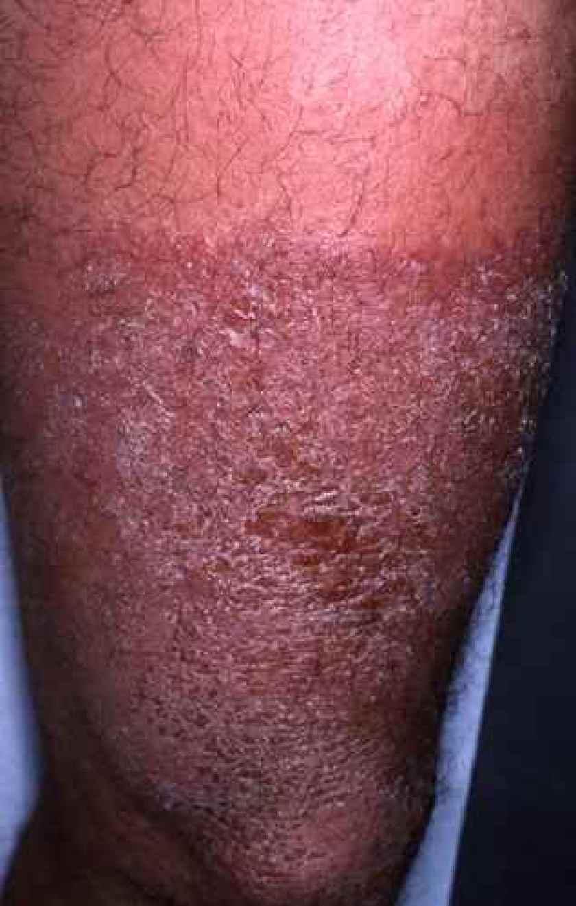 Le traitement du psoriasis par le laser tchelyabinsk