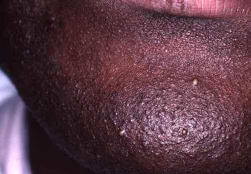 Le traitement de leczéma et le microorganisme végétal des mains