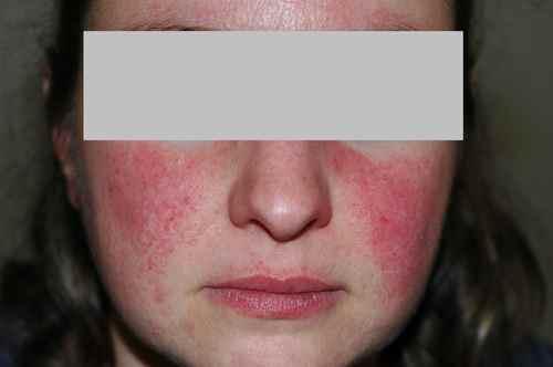 dermatite rosacée traitement