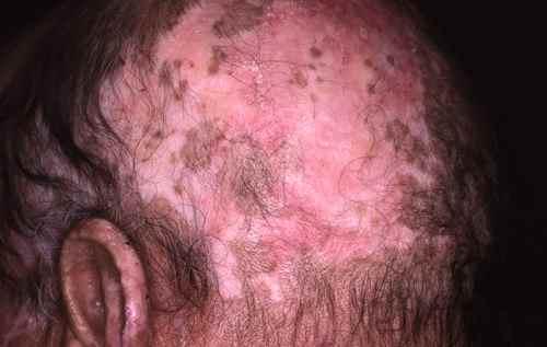 Alopécie de lupus