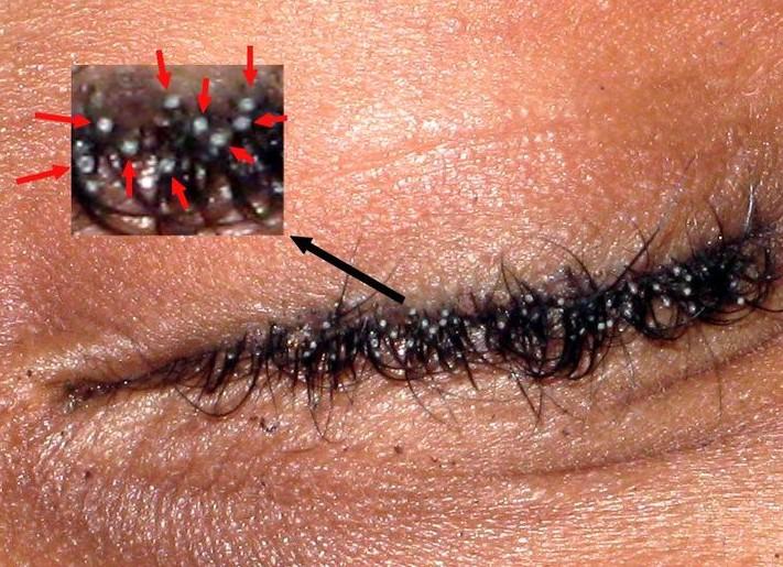 morpions les morpions ou poux de pubis dermatologue en ligne. Black Bedroom Furniture Sets. Home Design Ideas