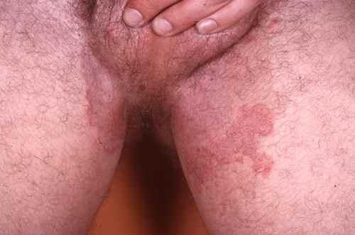 Dermatophytie (mycose) entre les cuisses et sur les bourses