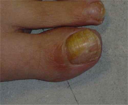 mycose ongle pied quel medecin
