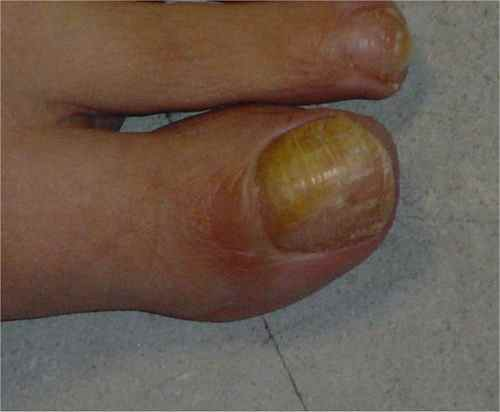 Longuent du microorganisme végétal mais le pied
