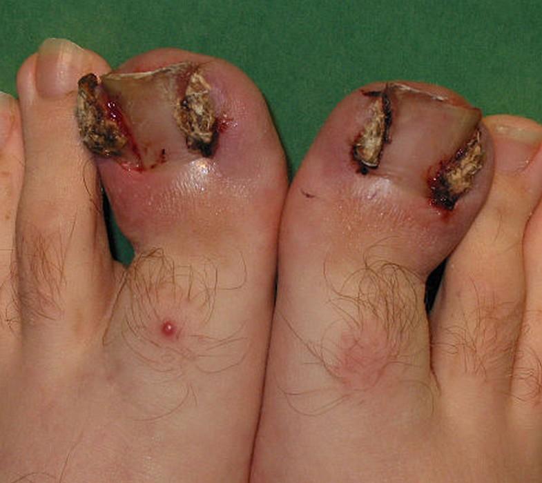 bourgeon charnu pied