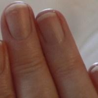 Solution contre l'ongle fendu et les fissures des ongles