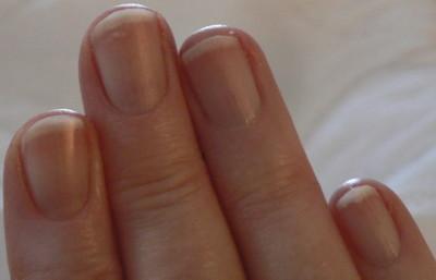 Solution Contre Longle Fendu Et Les Fissures Des Ongles