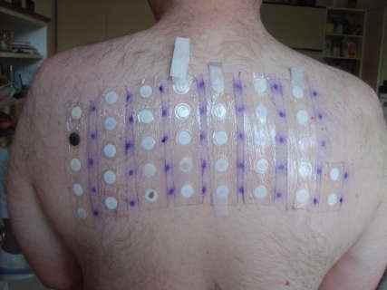 mustela dermatita atopica cauzele