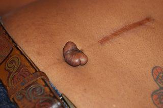 Cicatrice chéloide du nombril