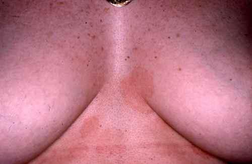 Plaques entre les seins