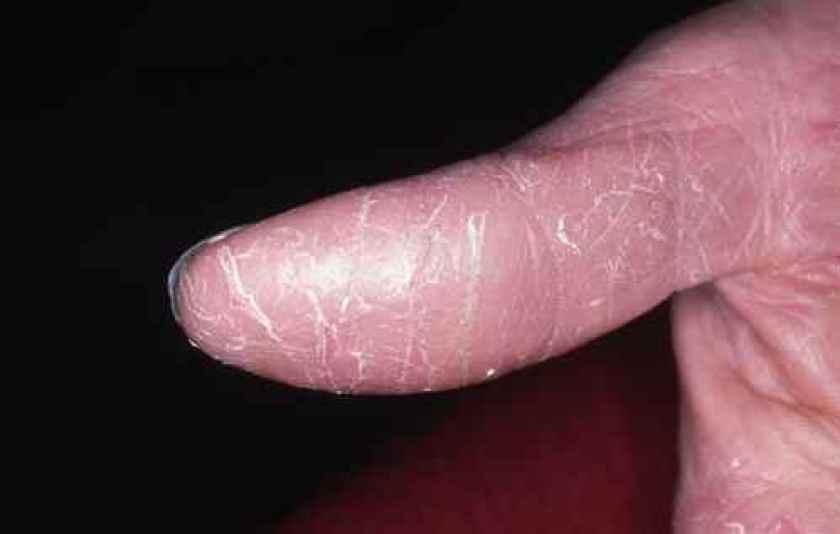 Pulpite ou fissure du doigt