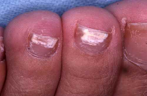 Taches blanches des ongles
