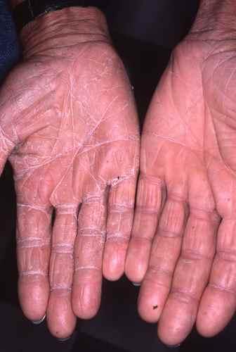 L'aspect sec et farineux des mains peut être du à une mycose (dermatophytie)