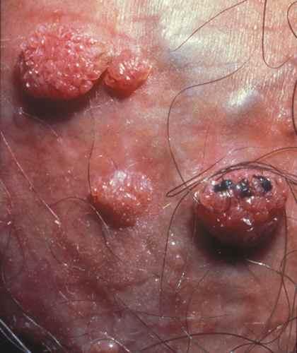 CONDYLOMES et PAPILLOMAVIRUS : les verrues genitales ou condylomes