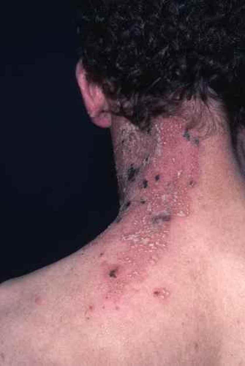 Lalimentation de poitrine et osteokhondroz