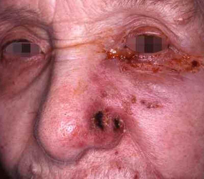 Atteinte de l'aile du nez : attention au zona ophtalmique