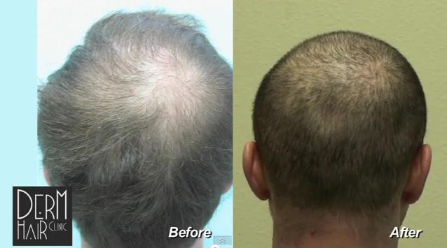 UGraft Advanced FUE Hair Transplant Using 5800 Grafts For