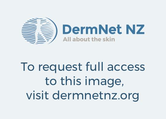 Folliculitis Decalvans DermNet New Zealand