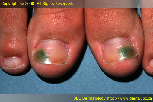 Pseudomonas Aeruginosa Infection Foot