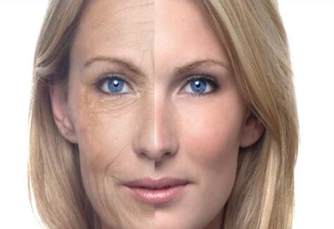 Vieillissement peau tabac