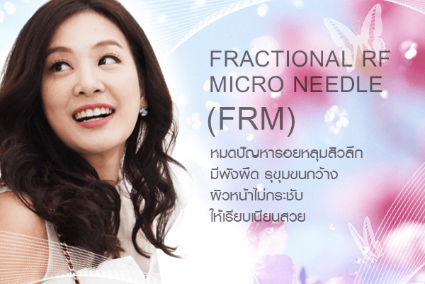 Fractional RF Micro Needle (FRM)