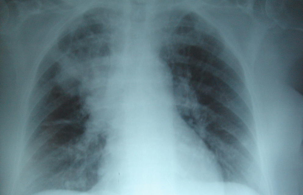 Radiografía del pulmón