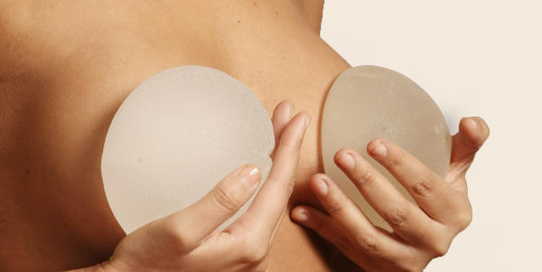 implantes mama (1)
