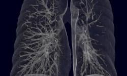 Sindromul-Macloed