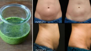 Lose-8kg-in-2-Weeks-With-Parsley