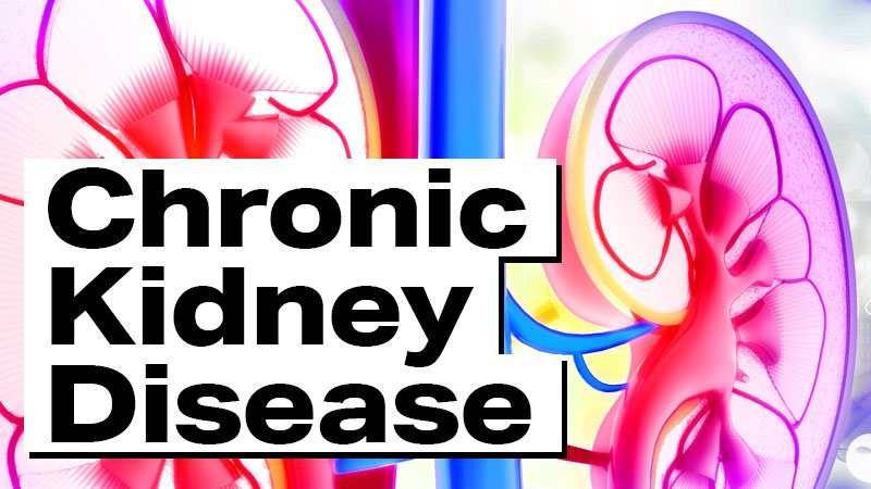 """Foods to Avoid When You Have Chronic Kidney Disease - stylized image of human kidneys with the text """"Chronic Kidney Disease"""" overlaid"""