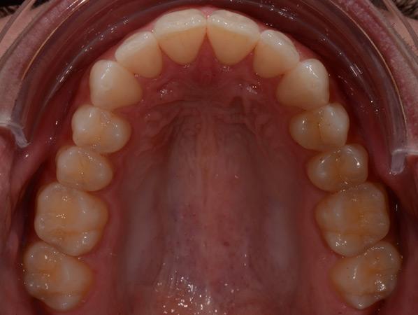 Westland Dentist Digital Dental Photography