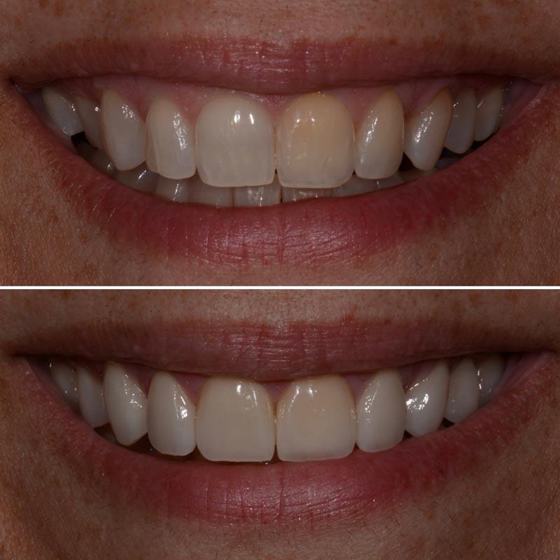 Cosmetic Dentist Westland, MI