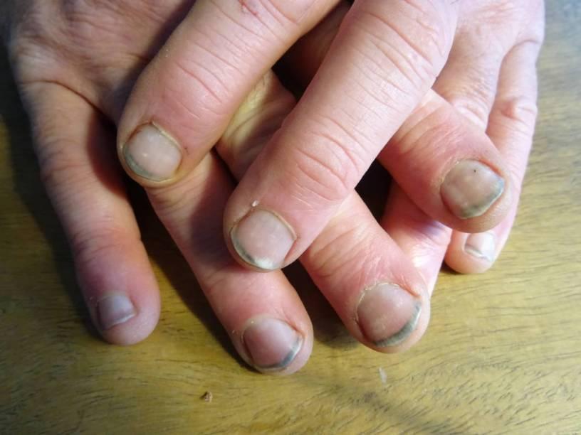Zwarte nagels….
