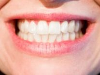 white, healthy teeth