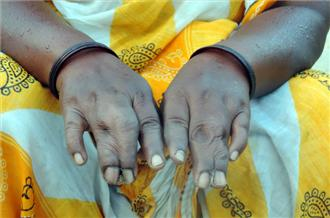 """Jingi Birulee was born with conjoined middle and ring fingers on both hands [Sanjay Pandey - Al Jazeera] Today, however, spontaneous abortions and miscarriages are common: """"Now, Jadugoda girls and boys are finding it difficult to find a match for themselves,"""" he said. Radiation pollution Several surveys conducted by independent agencies, including Japan's Kyoto University and India's Jadavpur University, have confirmed radiation pollution in the air, water and soil in Jadugoda."""