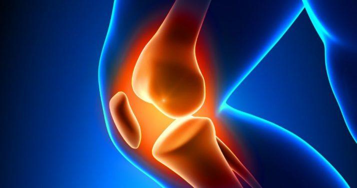 Desgaste del cartílago de la rodilla
