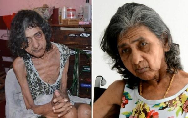 À esquerda, dona Francisca após ser resgatada. À direita, ela após um mês na Casa do Idoso