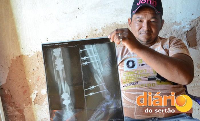 Raio-X mostra fratura na perna