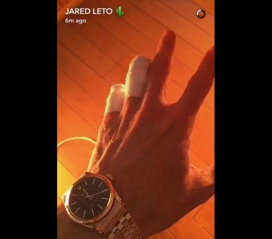 Fãs acreditam que Jared Leto amputou os dedos após foto na web © REPRODUÇÃO / SNAPCHAT