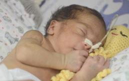 S.Bernardo introduz terapia com polvos de crochê para prematuros