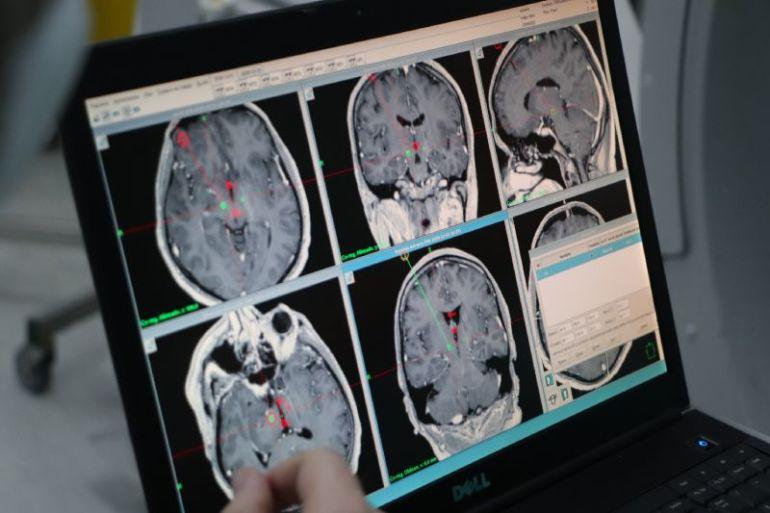Cirugía para pacientes con Parkinson será realizada tras convenio público – privado entre Gobierno Regional, Servicio de Salud Coquimbo y Desafío Levantemos Chile
