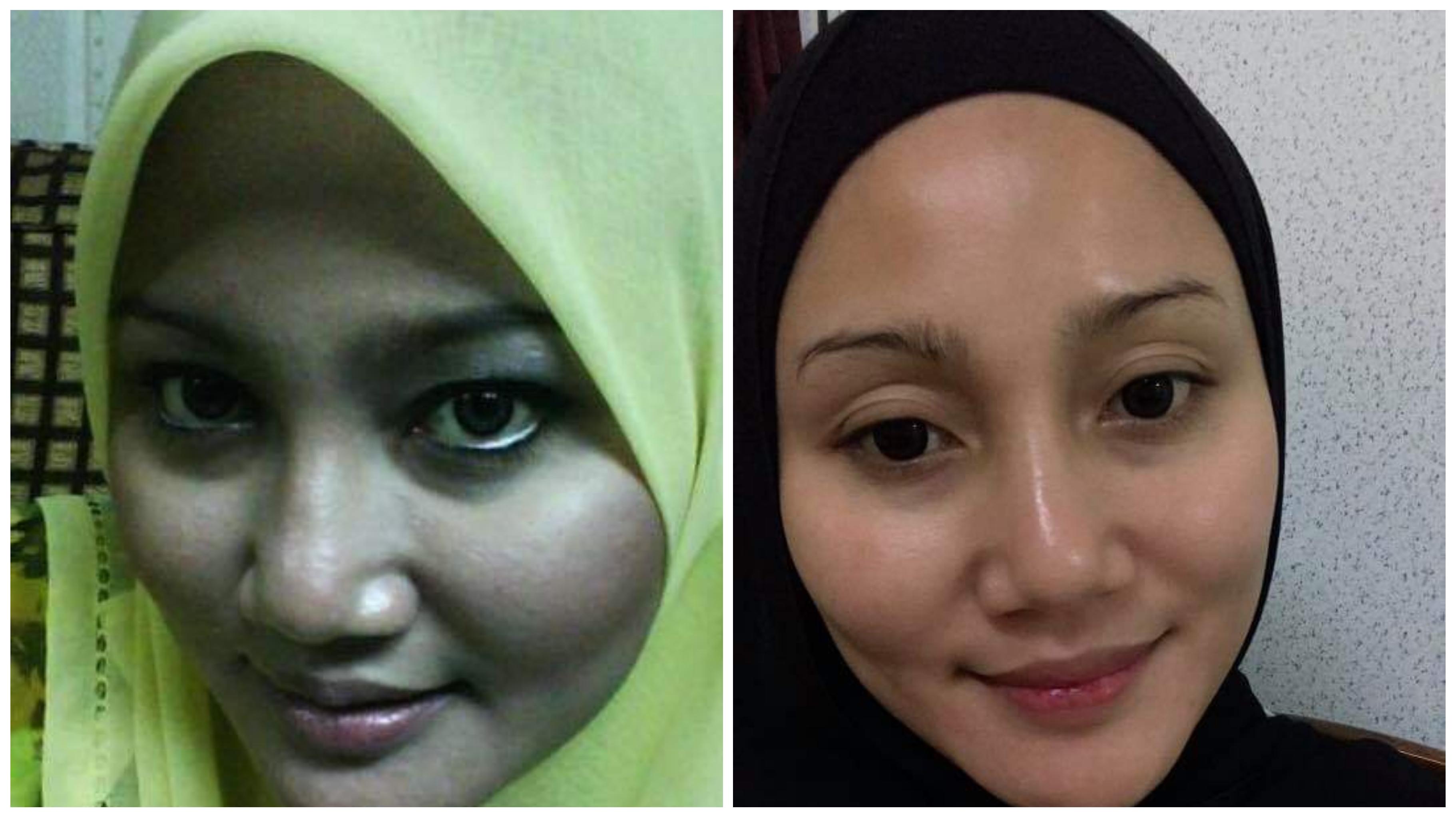 Hanya Gunakan Halia Dan Cuka, Kulit Menjadi Flawless Dan Bersinar Seperti Pergi Facial_5c8091a2436a1.jpeg
