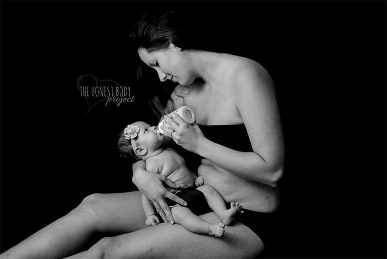 Foto: Reprodução / Natalie McCain / The Honest Body Project