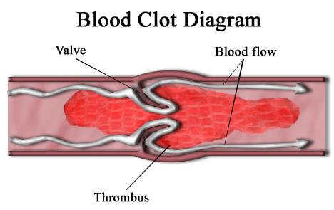 Pulmões perigosos nos coágulos sanguíneos são